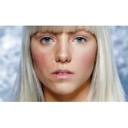 rimedi acne